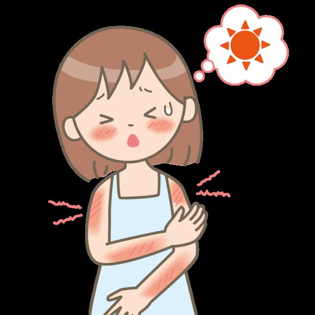 日焼けが痛む女の子の画像